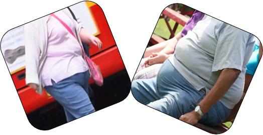 cims obesity