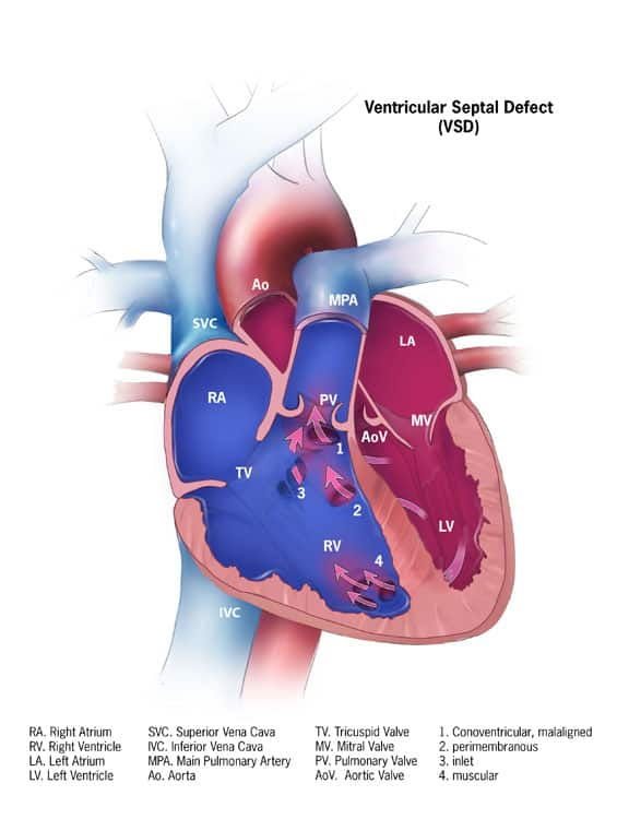 How does VSD (Ventricular Septal Defect) occur?