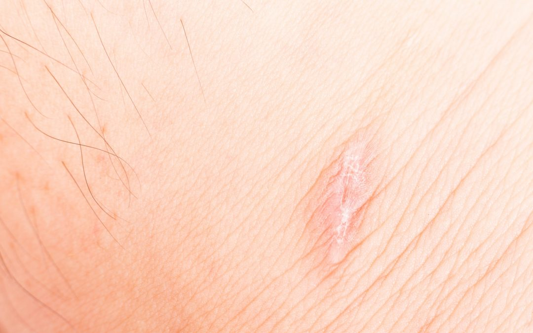 Scar on skin after recovered