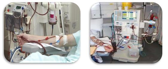 Haemodialysis
